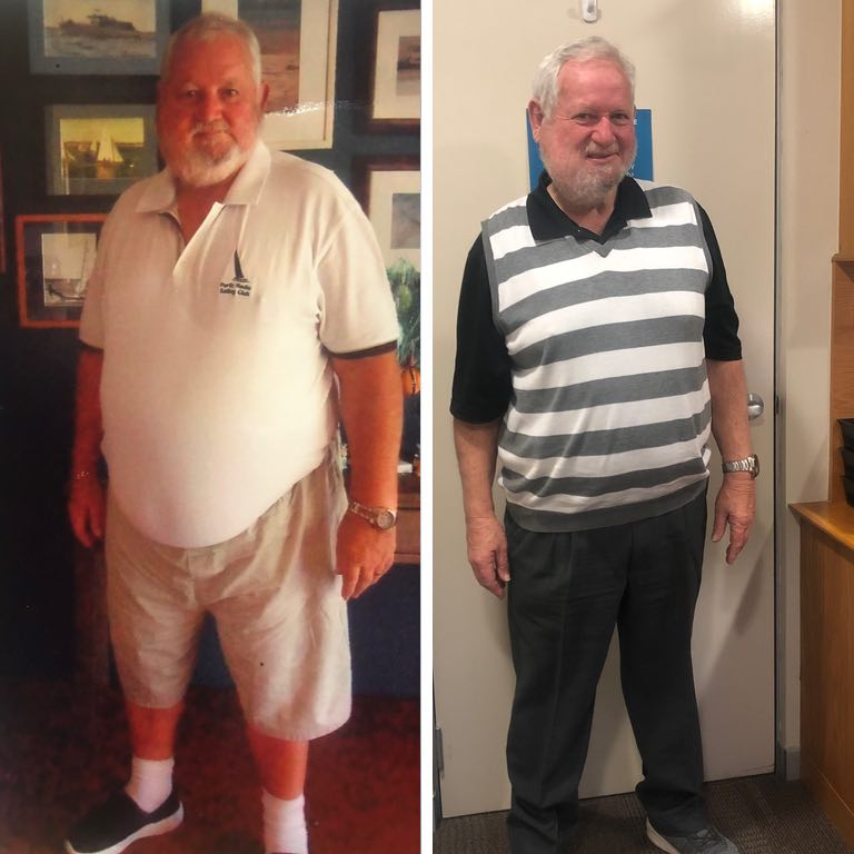 Bariatric surgery results Alan - Advance Surgical Perth