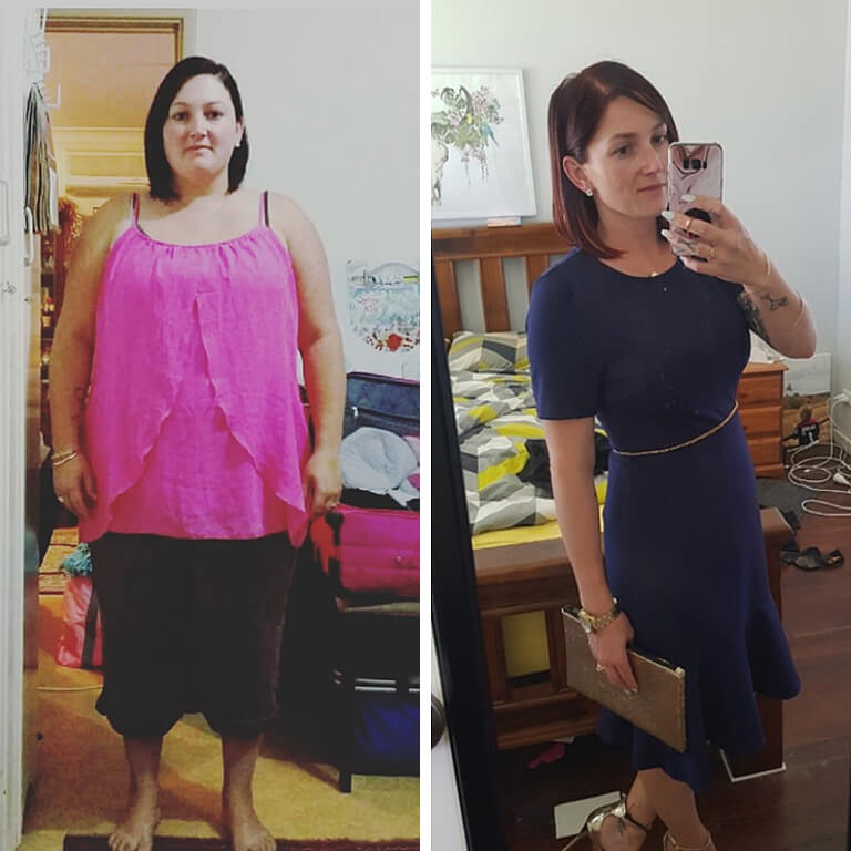 Bariatric surgery results Amy - Advance Surgical Perth