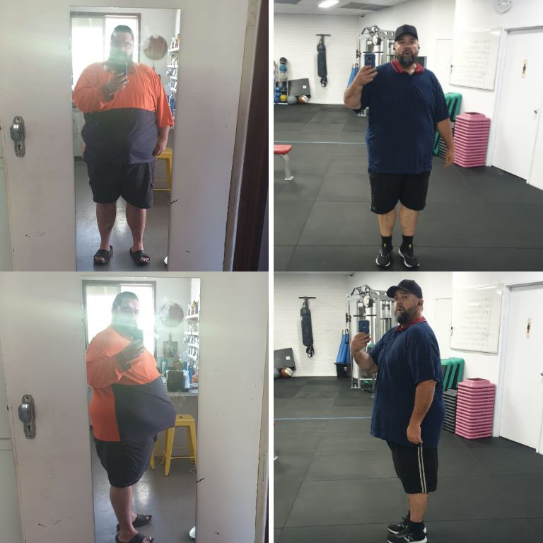 Andrew Before and after bariatric surgery Perth