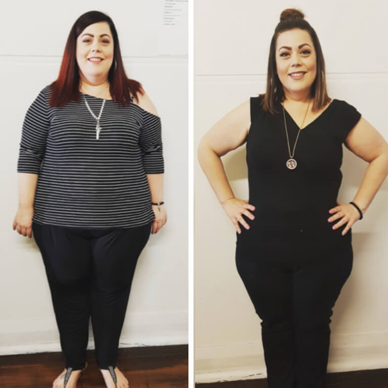 Bariatric surgery results Emma - Advance Surgical Perth