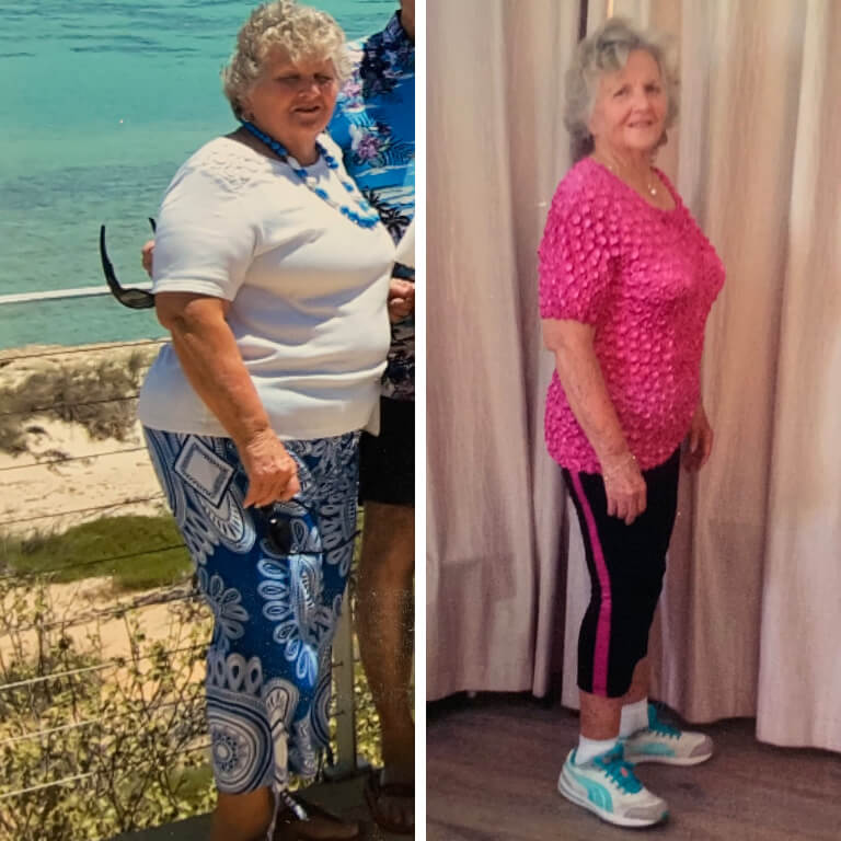 Bariatric surgery results Kathleen - Advance Surgical Perth