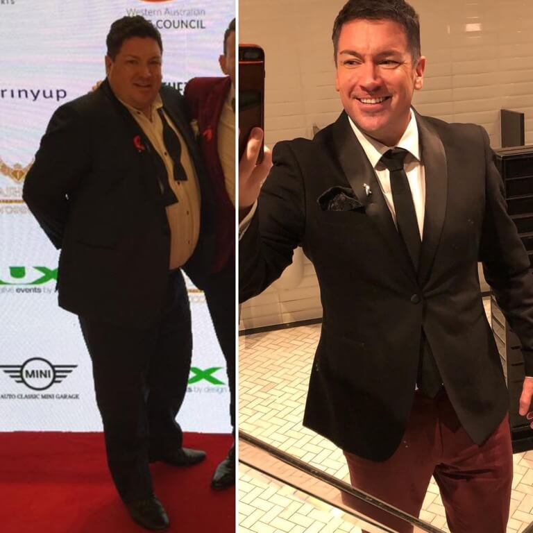 Bariatric surgery results Mark- Advance Surgical Perth
