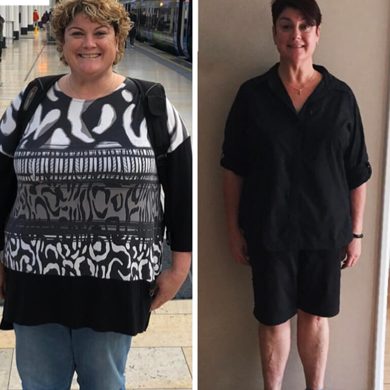 Bariatric surgery results Mel - Advance Surgical Perth