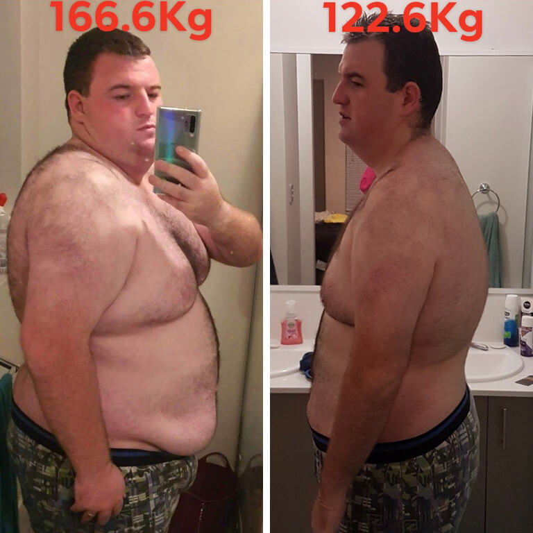 Bariatric surgery results Nathan - Advance Surgical Perth