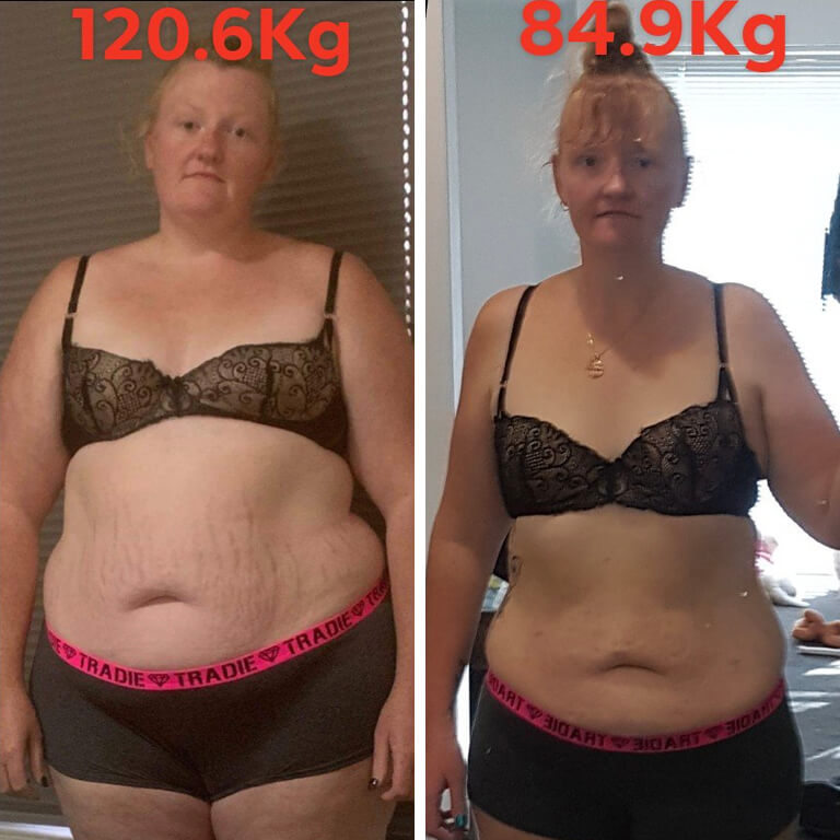 Bariatric surgery results Teeharnie - Advance Surgical Perth