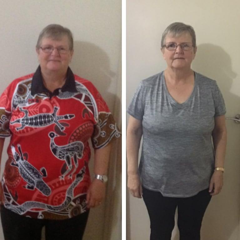 Bariatric surgery results Valma - Advance Surgical Perth