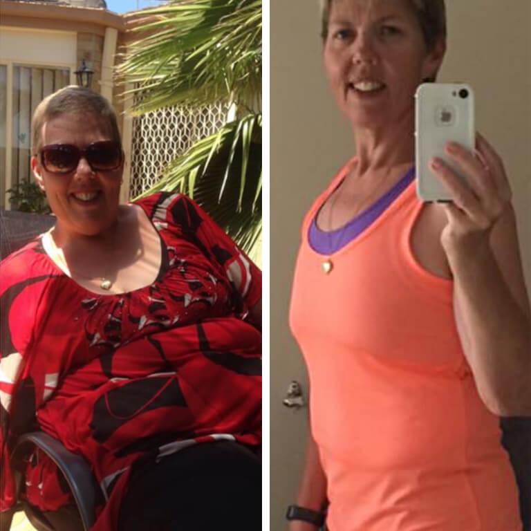 Bariatric surgery results Victoria - Advance Surgical Perth