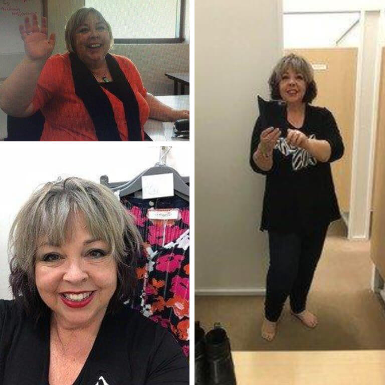 Bariatric surgery results Wendy - Advance Surgical Perth