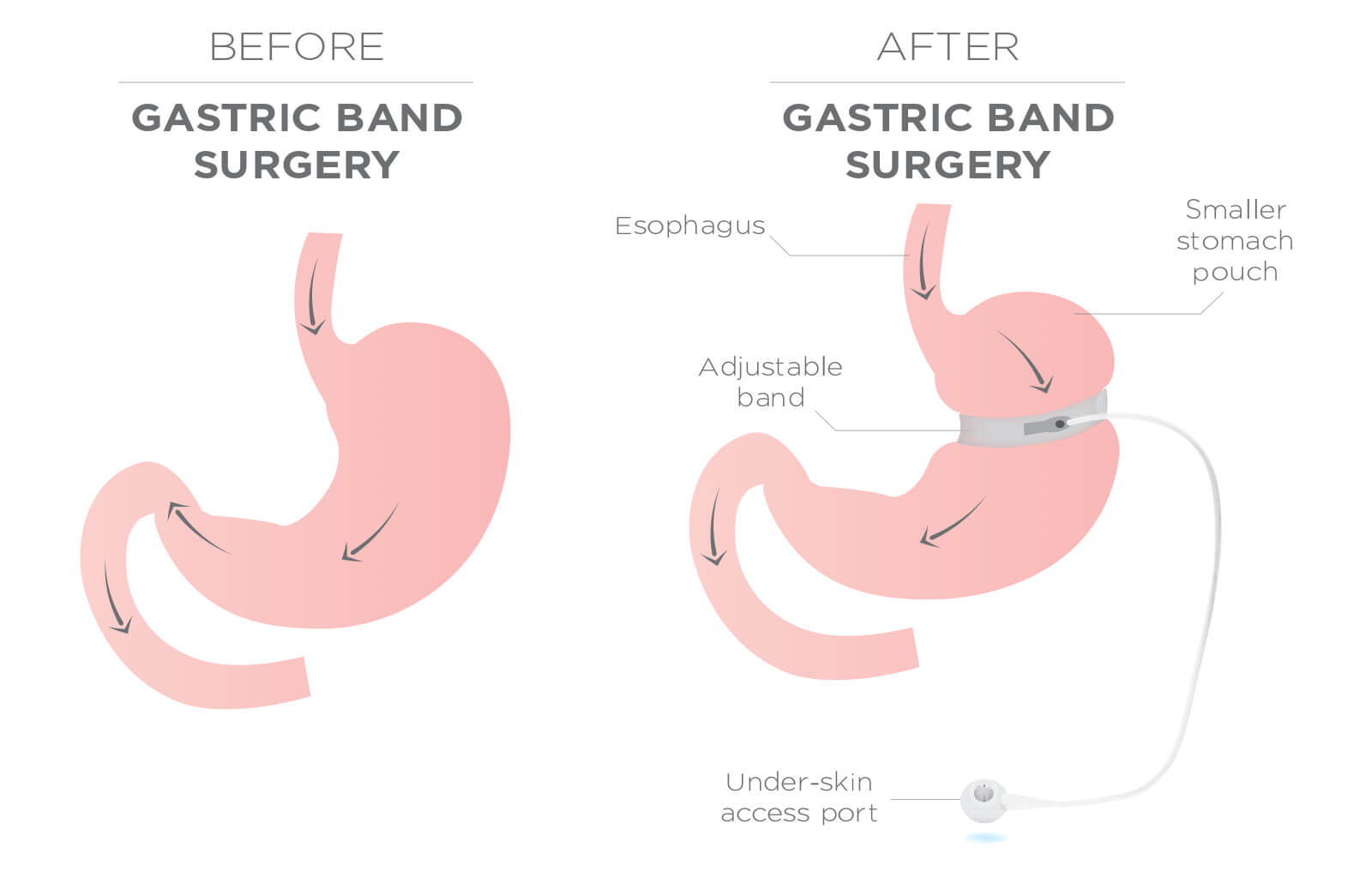 gastric band not functioning