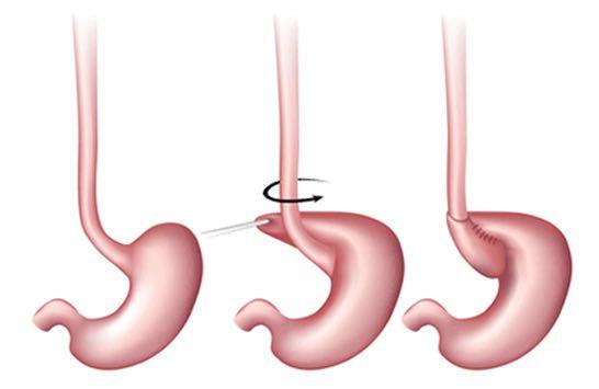 reflux surgery
