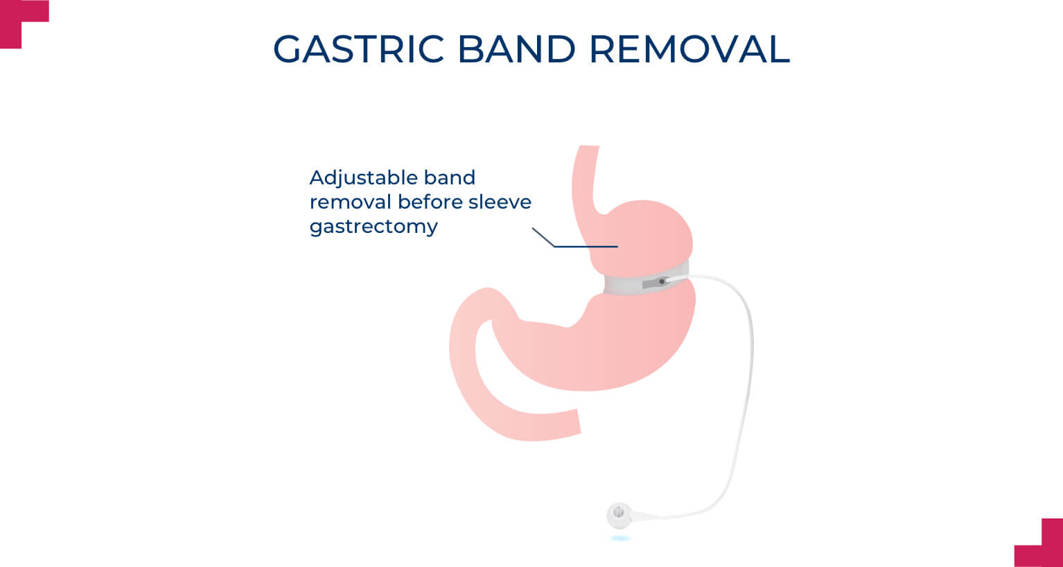 Gastric band Removal - Advance Surgical