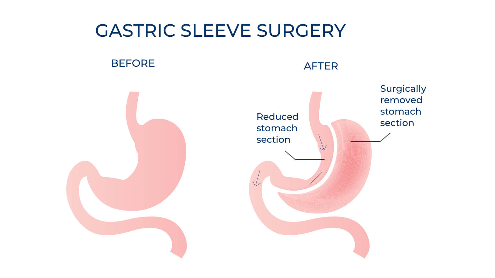 Sleeve gastrectomy - Advance Surgical Perth