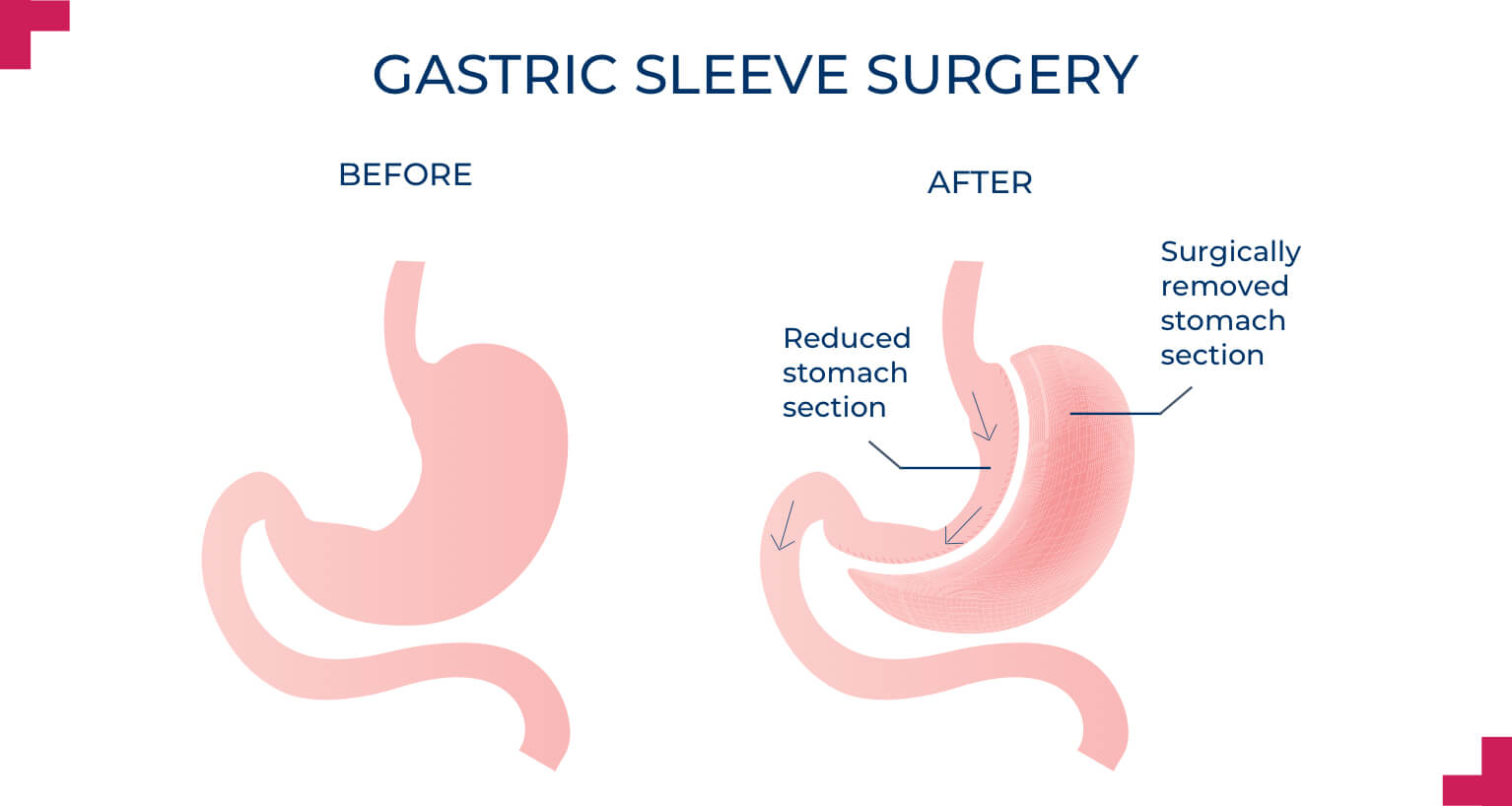 Gastric Sleeve Surgery - Advance Surgical