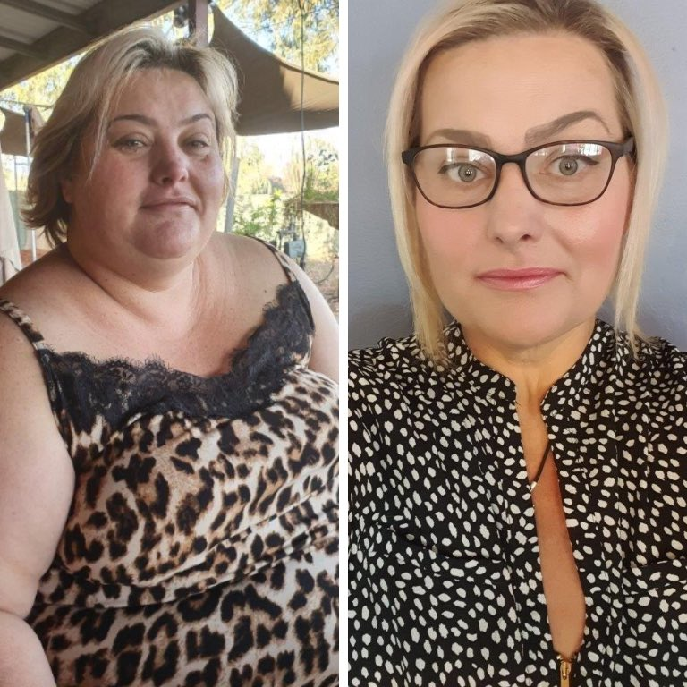Before and after gastric sleeve Perth