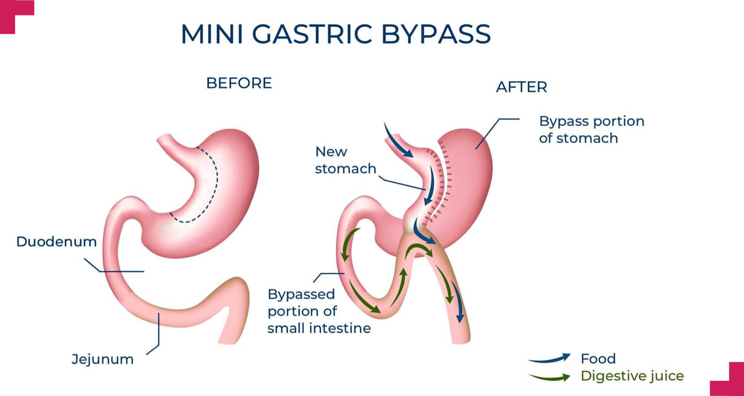 Mini gastric bypass - Advance Surgical Perth