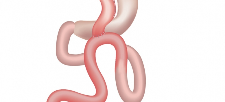 one anastomosis mini gastric bypass perth